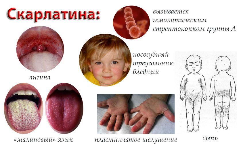 Скарлатина в контакте с беременными