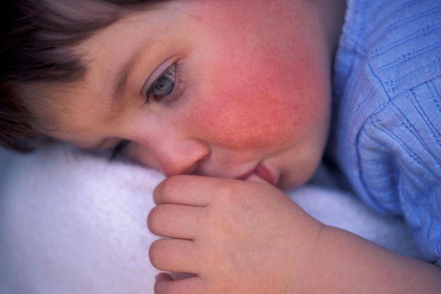 Скарлатина у ребёнка — как передаётся, каков период заражения