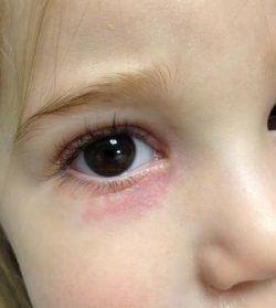 Красные синяки под глазами ребенка