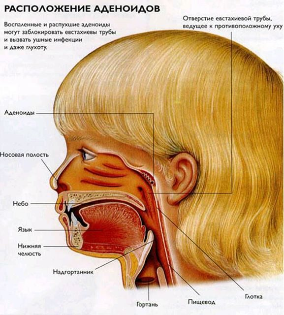 Аденоиды уей : лечение, симптомы воспаления с фото в носу и горле