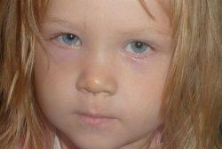 Синие круги под глазами у ребенка