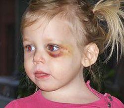 Синяк от удара под глазом ребенка