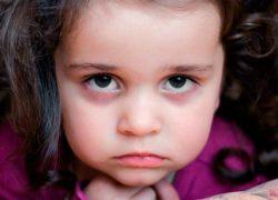 Синяки под глазами у ребенка