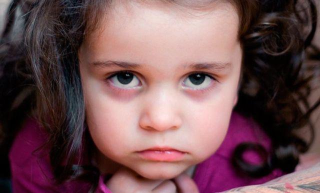 Синяки под глазами у подростка причины. У ребенка синяки под глазами. комаровский видео
