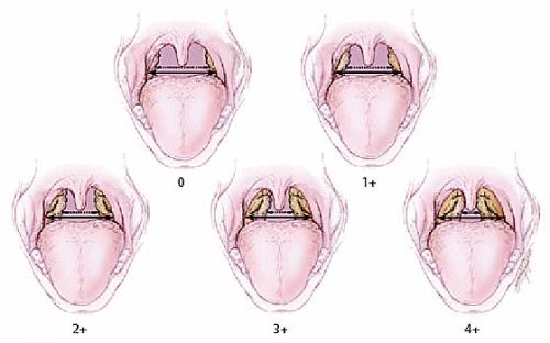 Стадии гипертрофии аденоидов