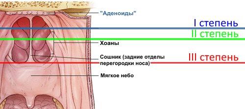 Степени воспаления аденоидов