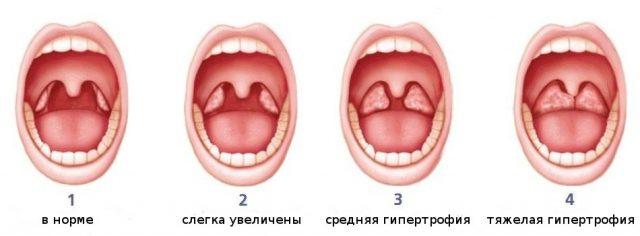 Степени аденоидов