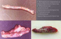 Фото аппендикса на различных стадиях