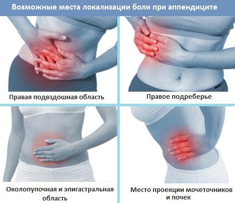 Место боли при аппендиците