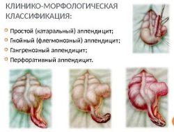 Виды аппендицита