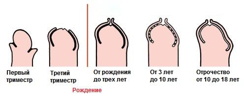Физиологический фимоз