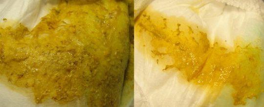 Золотистый стафилококк в кале у грудничка