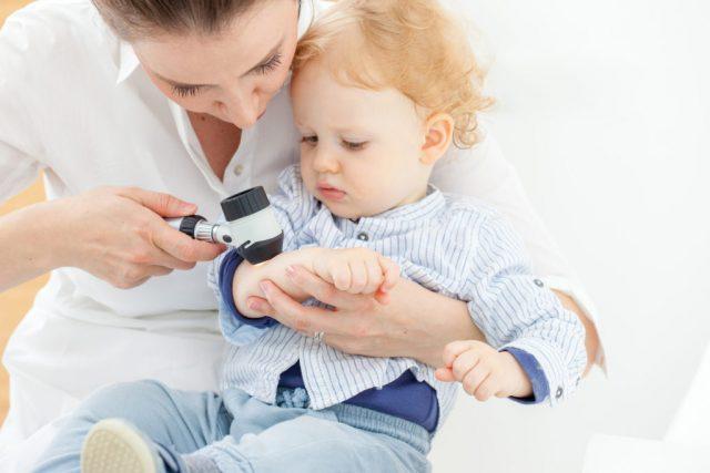 Атопический дерматит у детей симптомы и лечение фото