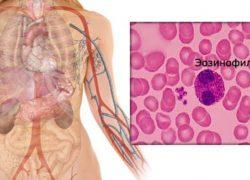 Повышены эозинофилы в крови