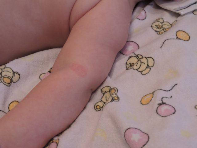 Сыпь у ребенка на внутренней стороне локтя и руках
